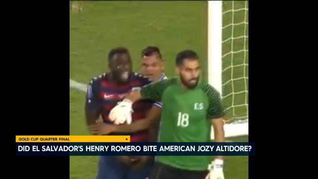 Did Romero bite Altidore?